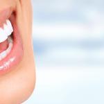 Χαμογελάστε Άφοβα: Λεύκανση Δοντιών Με Μια Επίσκεψη Στη YODA