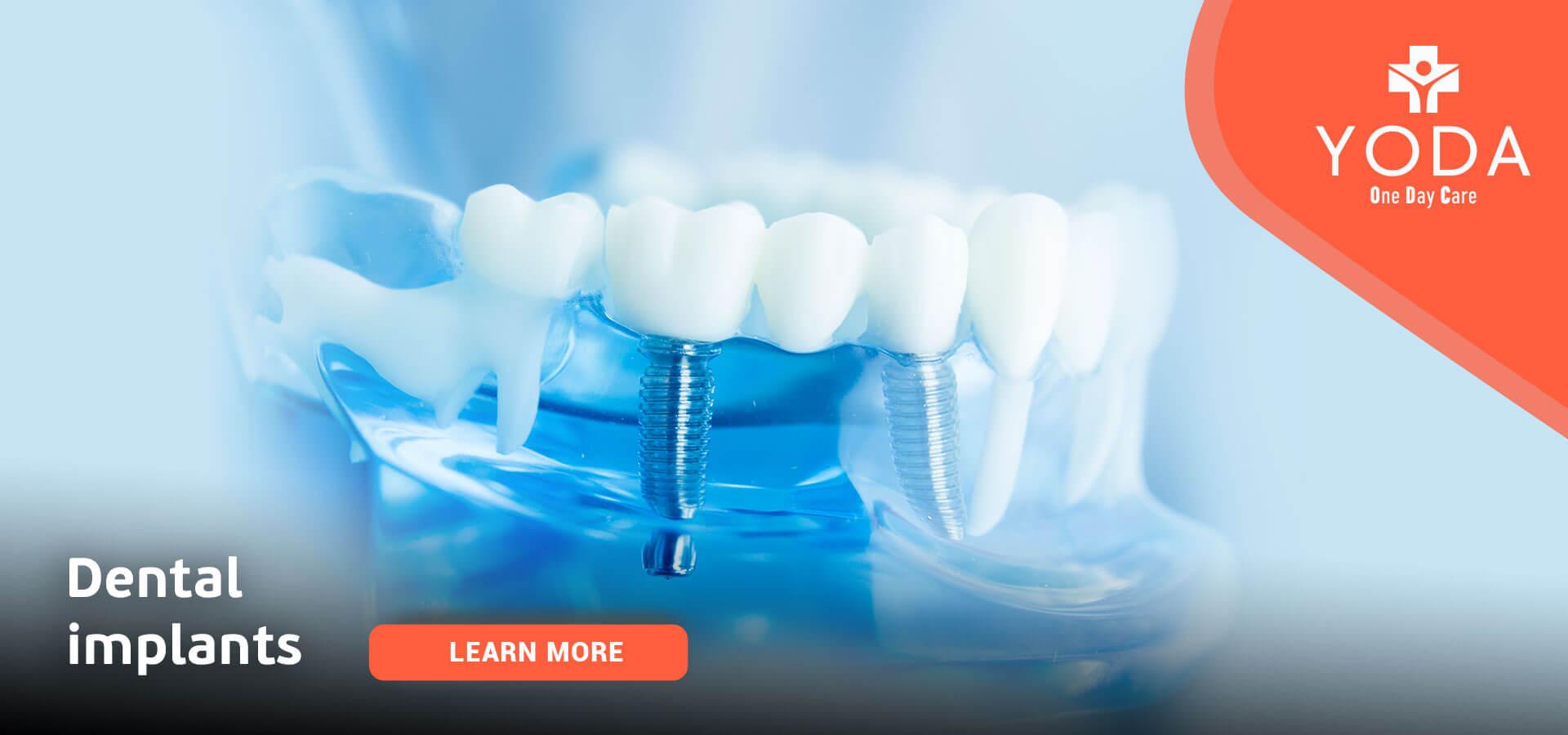 εξέταση γιατρός Πειραιάς YODA νοσηλία χειρουργείο οδοντίατρος δόντια πόνος ούλα