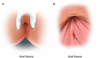 in02 πρωκτός τραυματισμός κώλος ραγάδα δακτύλιος πόνος αιμορροίδα anal pain peiraias πειραιάς hemmoroid