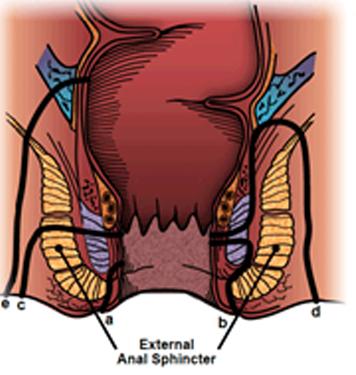 intro1 anal sphincter σφυγκτήρας πρωκτός πρωκτολόγος δακτύλιος εξέταση κώλος έδρα ασθένεια γιατρός πειραιάς