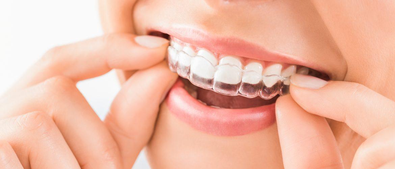 ορθοδοντική μετακίνηση, οδοντίατρος, Πειραιάς